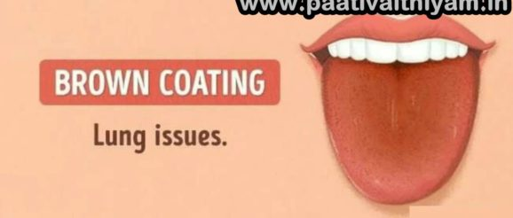 What is Your Tongue color Is Telling about your Heath